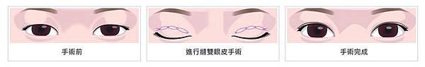 03縫雙眼皮手術醫師推薦.jpg