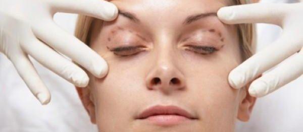 14割縫雙眼皮手術權威醫師診所.jpeg