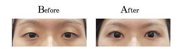 吳孟穎醫師封閉式縫雙眼皮案例-自然形小寬度雙眼皮.jpg