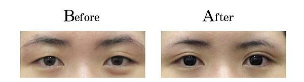 吳孟穎醫師開放式縫雙眼皮案例-自然形中寬度雙眼皮.jpg