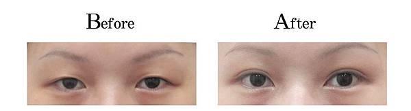 吳孟穎醫師開放式縫雙眼皮案例-自然形小寬度雙眼皮.jpg