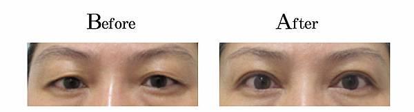 吳孟穎醫師老化修皮開放式割雙眼皮案例-自然型大雙眼皮.jpg