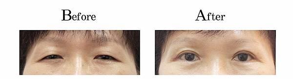 吳孟穎醫師老化修皮開放式割雙眼皮案例-自然型小雙眼皮.jpg