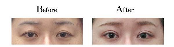 吳孟穎醫師開放式割雙眼皮案例-上妝好看大寬度雙眼皮.jpg