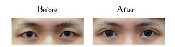 吳孟穎醫師開放式割雙眼皮案例-自然形大寬度雙眼皮.jpg