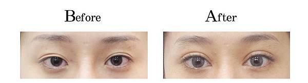 吳孟穎醫師開放式割雙眼皮案例-自然型大寬度雙眼皮.jpg
