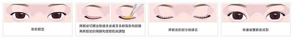 02割雙眼皮手術權威醫師推薦.jpg