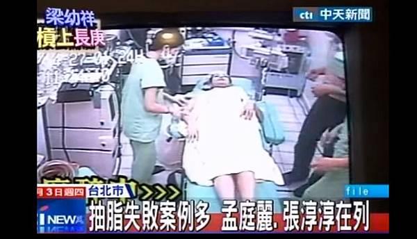 03抽脂手術失敗後遺症風險副作用