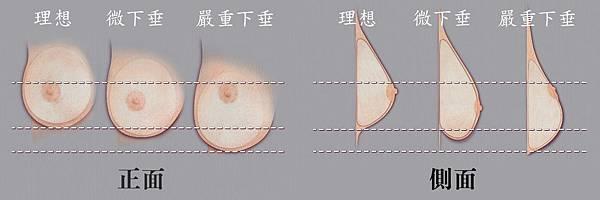 007水滴型果凍矽膠隆乳手術術前術後照片效果.jpg