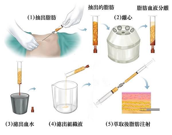 004自體脂肪移植手術案例術前術後恢復期.jpg