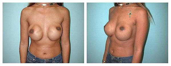 異假體隆乳失敗莢膜攣縮需進行二次隆乳手術.jpg