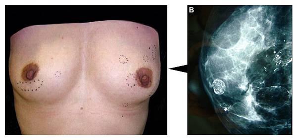 自體脂肪隆乳失敗鈣化二次隆乳手術.jpg