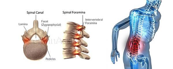 01腰痛、下背痛、肩頸痠痛問題.jpg