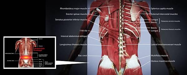03腰痛可分為哪幾種,形成原因為何?.jpg