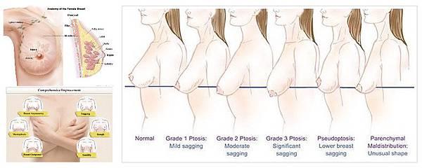 01產後乳房萎縮鬆弛下垂提乳手術.jpg