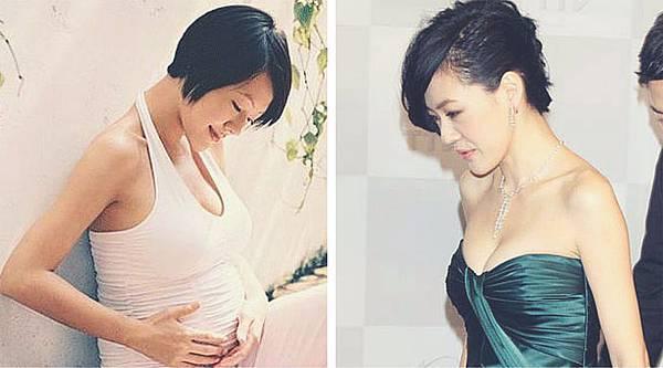07小S隆乳證據.jpg