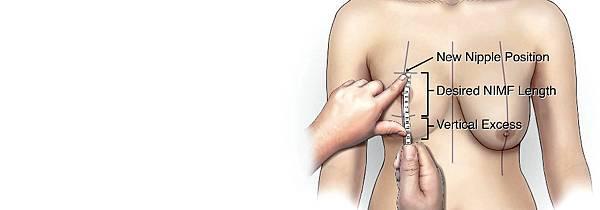 提乳手術風險後遺症併發症副作用.jpg