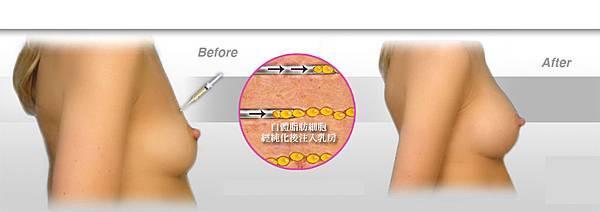 03自體脂肪隆乳豐胸手術失敗後遺症風險完整掌控.jpg