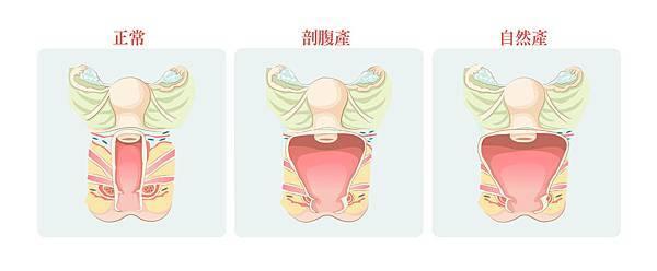 04陰道緊實整形手術與陰道緊實雷射差異為何?.jpg