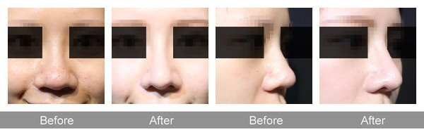 曾文尚二次隆鼻手術案例.jpg