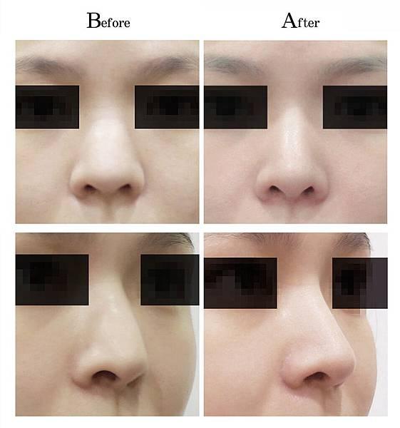 複合式隆鼻手術敲鼻骨.jpg