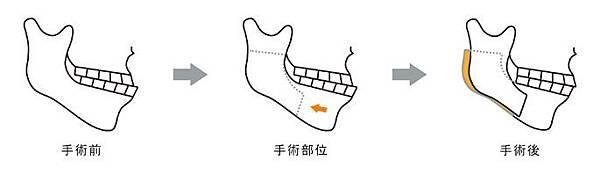 04正顎手術PTT推薦醫師醫生診所.jpg