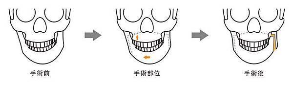 05正顎手術失敗後遺症風險併發症.jpg