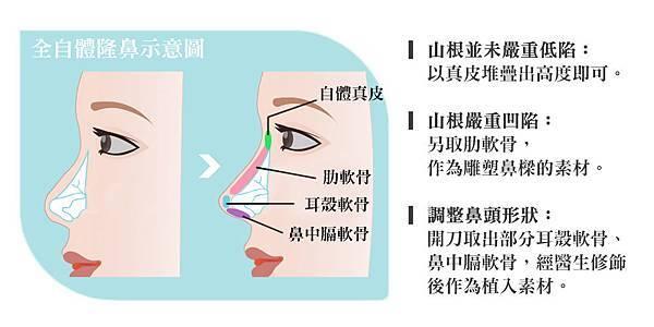 全自體肋骨隆鼻與全自體真皮隆鼻權威醫師醫生推薦