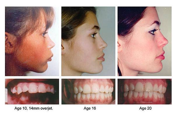 03縮唇修唇手術失敗後遺症風險併發症副作用.jpg