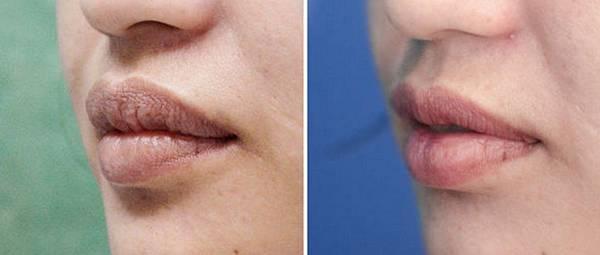 08縮唇修唇手術案例.jpg
