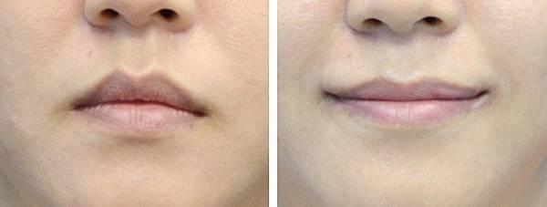 12縮唇修唇手術.jpg