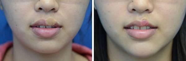 15複合式縮修嘴唇手術.jpg