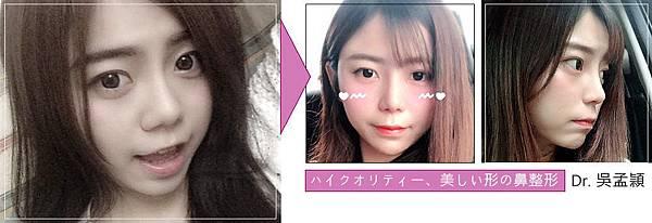 三段式隆鼻手術美型延長.jpg