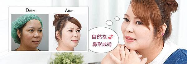 隆鼻手術自然美型鼻整形,RITA三段結構式隆鼻心得日記全紀錄 吳孟穎醫師.jpg