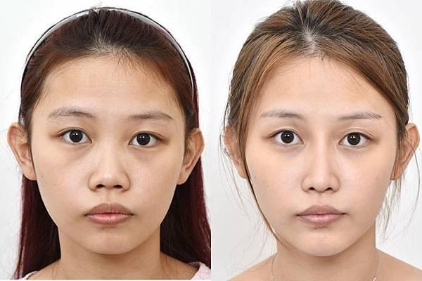隆鼻手術前後比對.jpg