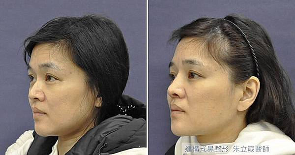 朱立箴隆鼻手術權威隆鼻案例02.jpg