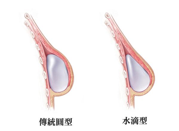 台中水滴型隆乳_水滴vs圓型