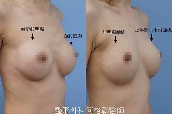 台中隆乳推薦-台中水滴隆乳_圓形vs水滴