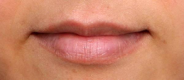 台中玻尿酸豐唇