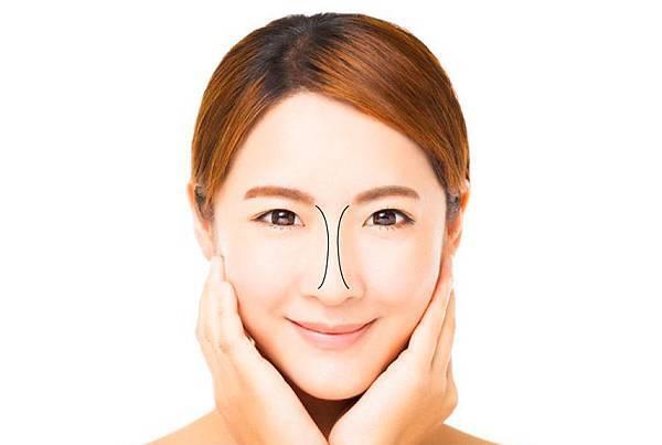 隆鼻的美麗曲線(dorsal aesthetic line)