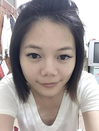 台中格嘉整形外科,韓式隆鼻修復實例