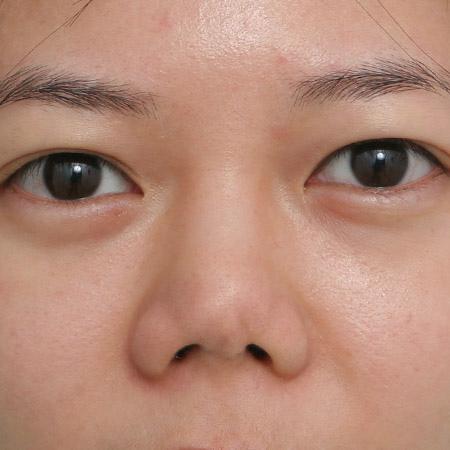 韓式隆鼻修復實例