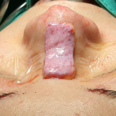 韓式隆鼻修復手術