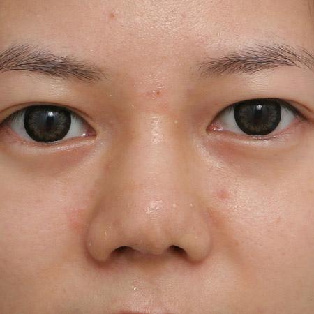 韓式隆鼻修復後