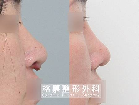 隆鼻感染修復