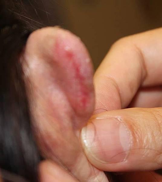 明錦整形外科診所林仲樞醫師耳朵蟹足腫林仲樞明錦術前術後恢復期蟹足腫10.jpg