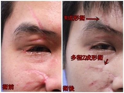 疤痕手術前後2.jpg
