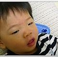 玫瑰疹出疹第一天05230019 (3)
