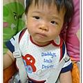 玫瑰疹出疹第三天05251800 (2)
