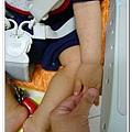 玫瑰疹出疹第三天05251800